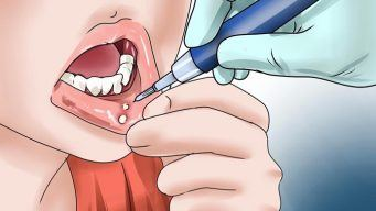 home remedies for tongue ulcers