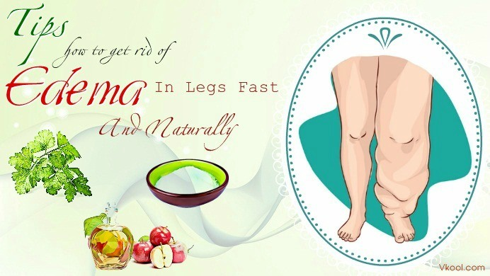 how to get rid of edema