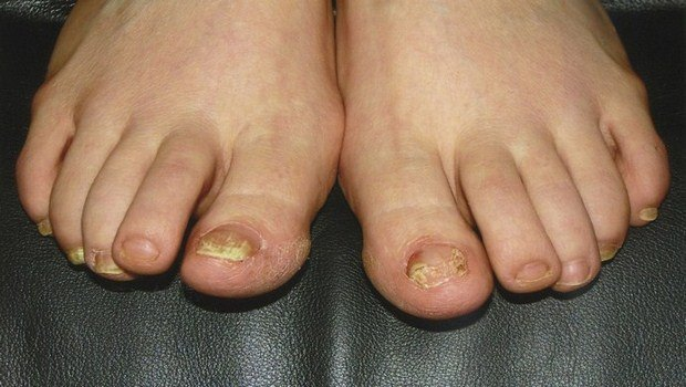 top 7 home remedies for foot fungus between toes you should follow