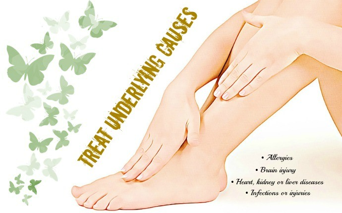 how to get rid of edema - treat underlying causes