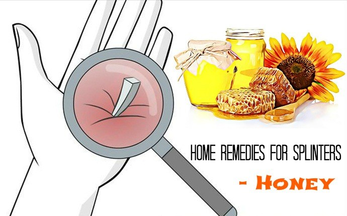 home remedies for splinters - honey