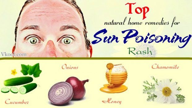 natural home remedies for sun poisoning