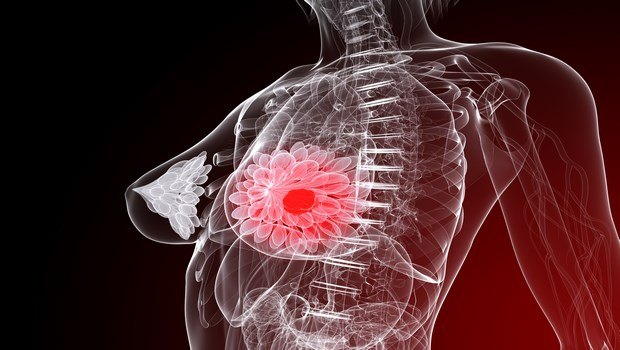 how to prevent breast cancer-limit hormone therapy