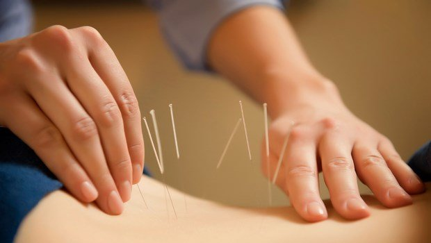 how to treat impotence-acupuncture