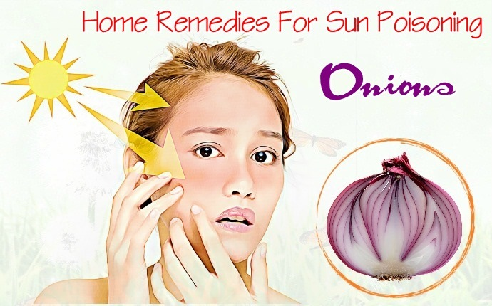 home remedies for sun poisoning - onions