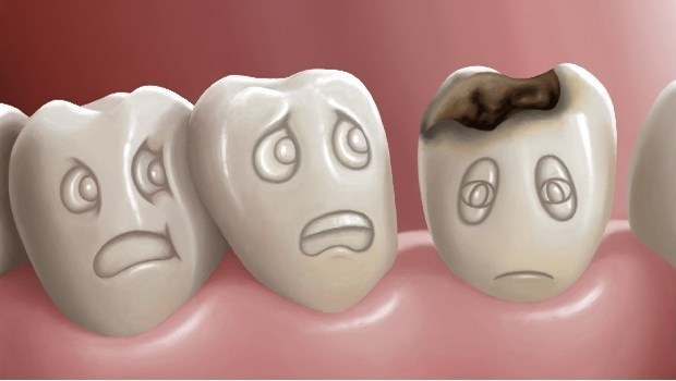 causes of toothache-tooth decay