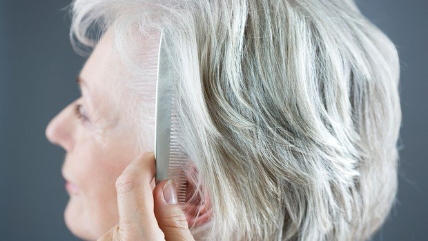 common hair problems-gray hair