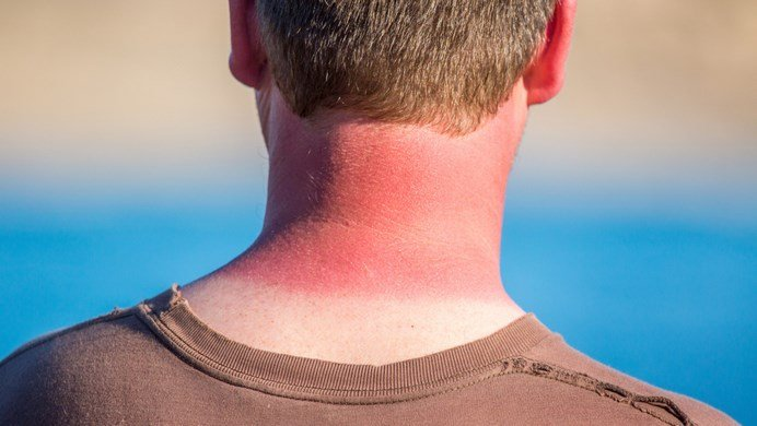 How To Treat Sunburn On Face Naturally