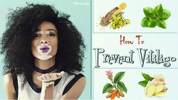 how to prevent vitiligo