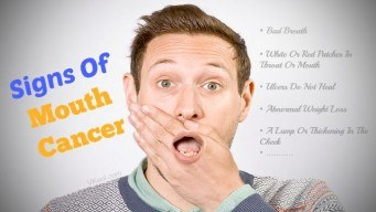 Signs of mouth cancer
