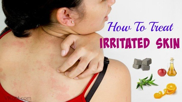 how to treat irritated skin