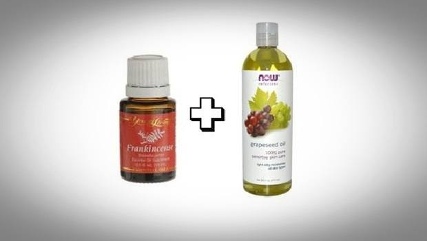 how to treat sebaceous cysts - frankincense oil and grapeseed oil