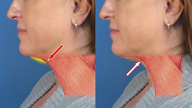 home remedies for double chin - platysma muscle exercise