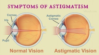 common early symptoms of astigmatism