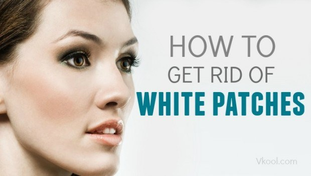 how to get rid of white patches