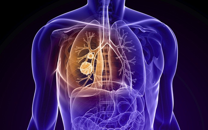 shortness of breath causes - chronic obstructive pulmonary disease