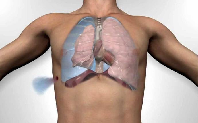 shortness of breath causes - pneumothorax