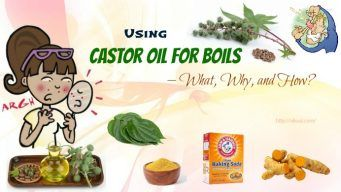 castor oil for boils and cysts