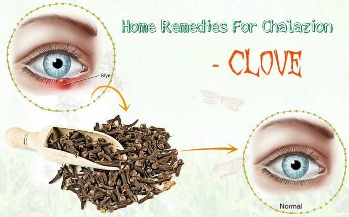 home remedies for chalazion - clove