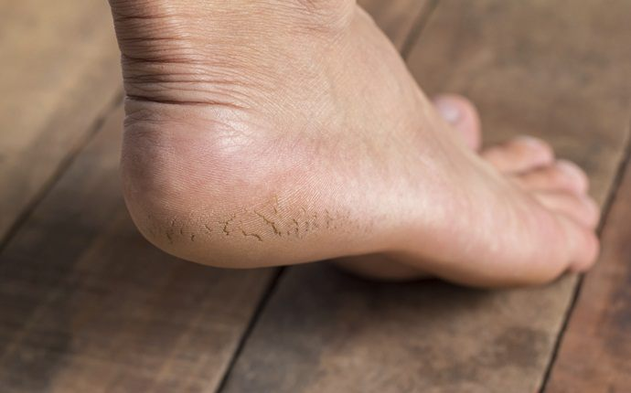 benefits of papaya - heal cracked heels