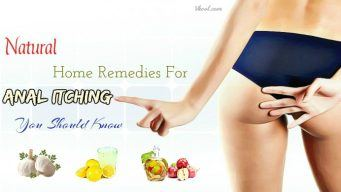 natural home remedies for anal itching