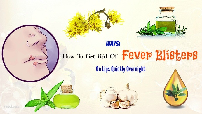 how to get rid of fever blisters overnight