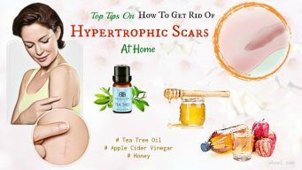 how to get rid of hypertrophic scars naturally