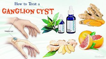 how to treat a ganglion cyst naturally
