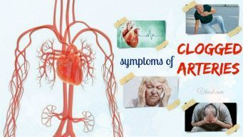 symptoms of clogged arteries