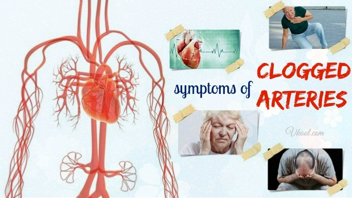 signs and symptoms of clogged arteries
