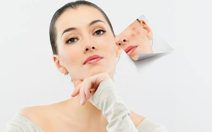 benefits of multani mitti - treat pimples and acne