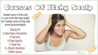 causes of itchy scalp