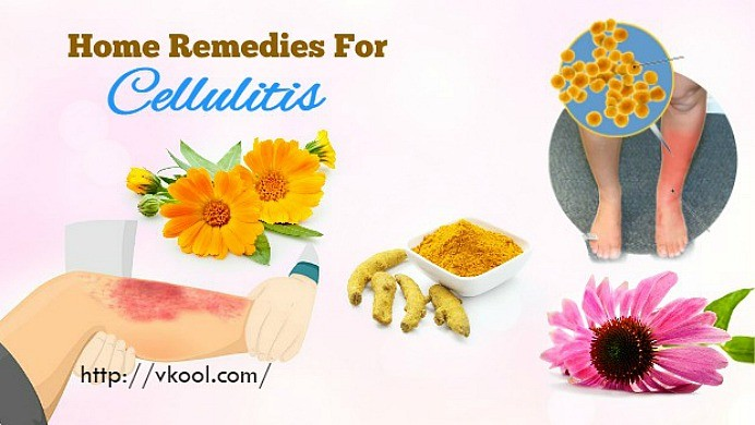 home remedies for cellulitis on legs