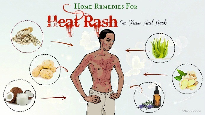 home remedies for heat rash on face