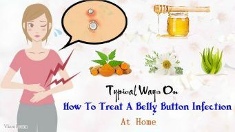 how to treat a belly button infection at home