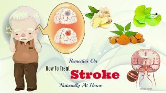 how to treat stroke at home