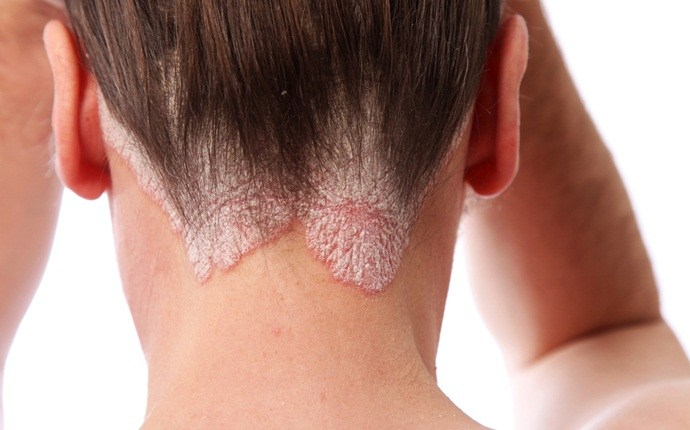 causes of itchy scalp - psoriasis