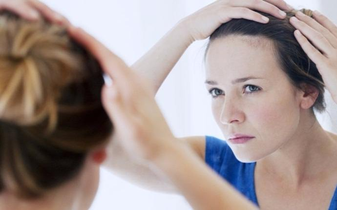 causes of itchy scalp - seborrhoeic dermatitis