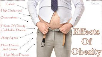 signs and effects of obesity