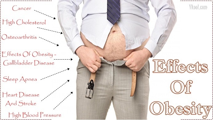 10 Side Effects Of Obesity On The Body You Should Know
