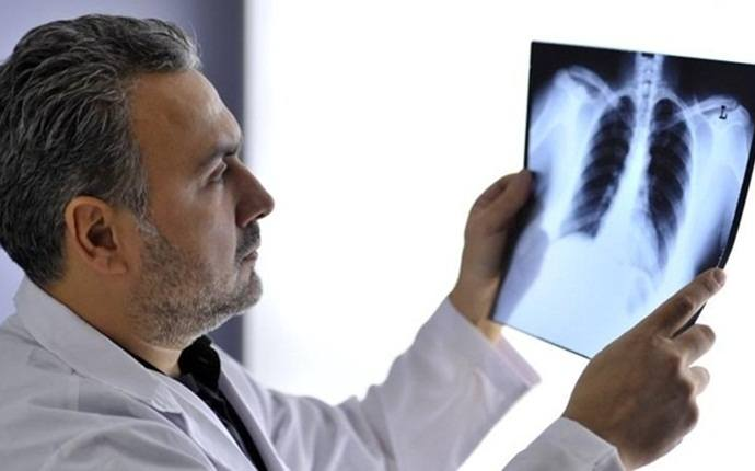 symptoms of lung cancer - frequent chest infections