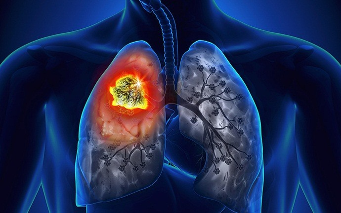 reasons to quit smoking - increase the chance of getting lung cancer