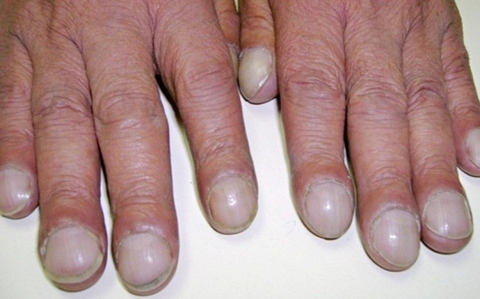 symptoms of lung cancer - nail clubbing