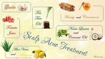 natural scalp acne treatment