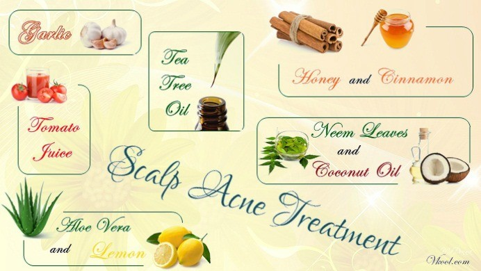 Top 10 Ideas Of Scalp Acne Treatment – Natural & Effective Tips