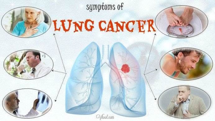 10 Early Symptoms Of Lung Cancer In Men And Women