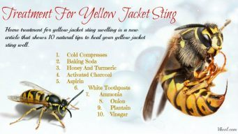 home treatment for yellow jacket sting