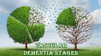 vascular-dementia-stages