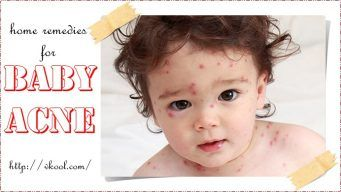 natural home remedies for baby acne