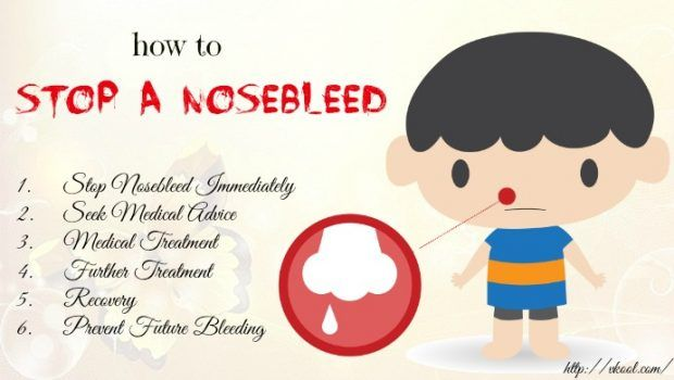 how to stop a nosebleed fast